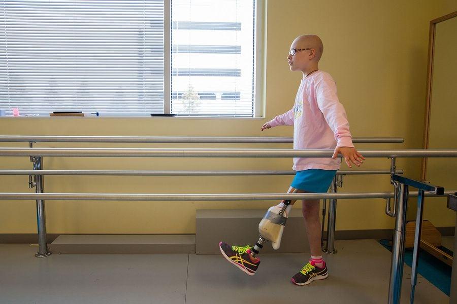 grace-osteosarcoma-prosthesis